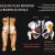 Anatomie: vue du bassin et des muscles du plan profond de la région glutéale.
