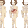 Thérapie Génique – Sanfilippo