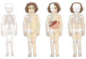 Morphologie et squelette d'un enfant atteint de la maladie de Sanfilippo.
