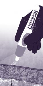 Illustration médicale dessinée pour présenter une technique de point chirurgical associée à l'utilisation de la colle cutanée Dermabond. Bichromie (pour l'impression en deux couleurs, ici le noir et le violet).